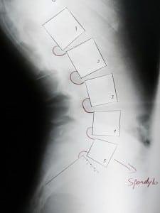 Spondylolisthesis x-ray Grand Rapids MI